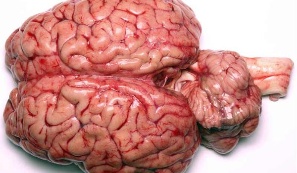 brain-human-111101-02
