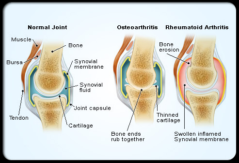 rheumatoid_arthritis_s4_normal_affected_joints