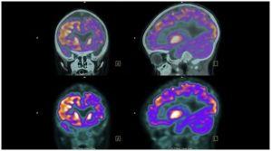 stroke brain